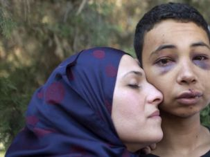 Tariq Abu Khdeir is hugged by his mother following his beating in East Jerusalem.