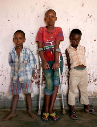 Wounded in Burundi: Aline, on crutches in 2007, with her cousin (left) and brother.